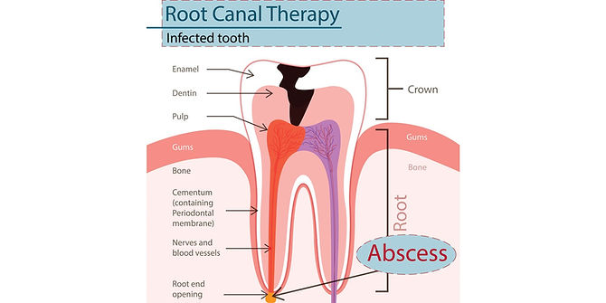 Root canal therapy for an infected tooth, Abscess is present.
