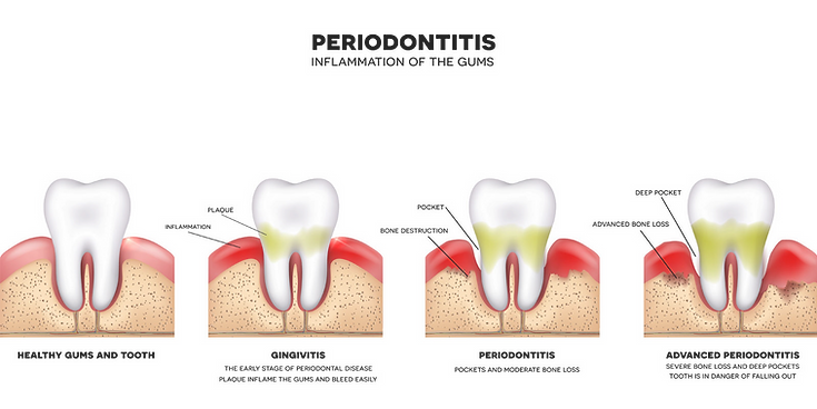 Periodontitis or periodontal disease (inflammation of the gums) explaining the progression from healthy gums and tooth, then gingivitis which is the early stage of periodontal disease with plaque imflamming the gums and bleeding, then periodontal disease with pockets and moderate bone loss, and finally advanced periodontal disease with severe bone loss and deep pockets, the tooth is in danger of falling out.