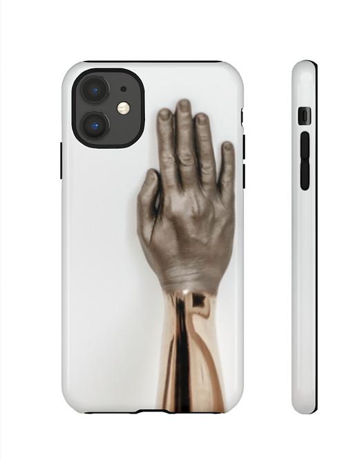 Golden Hands   iPhone Case