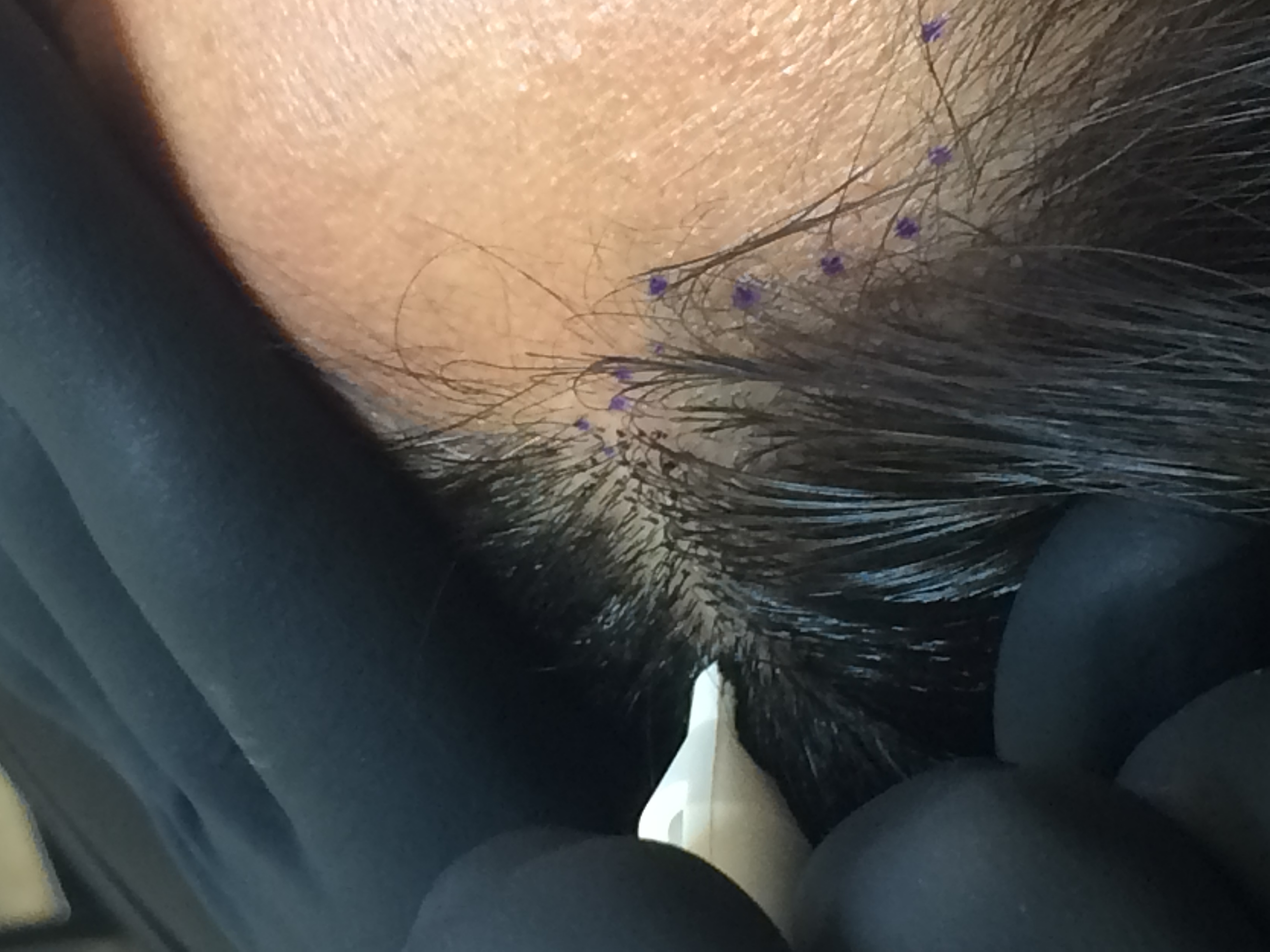 Replique Scalp Micropigmentation