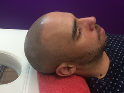 Replique Scalp Micropigmentation