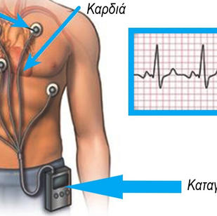 Καταγραφέας (Holter) καρδιακού ρυθμού