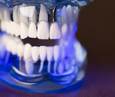 Dentist (3).png
