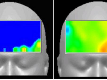 セックスと脳科学〜性的快感は脳を麻痺させる