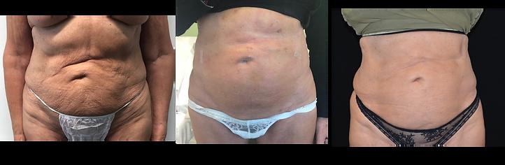 renuvion-abdomen.png