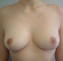 réduction mammaire docteur benadiba