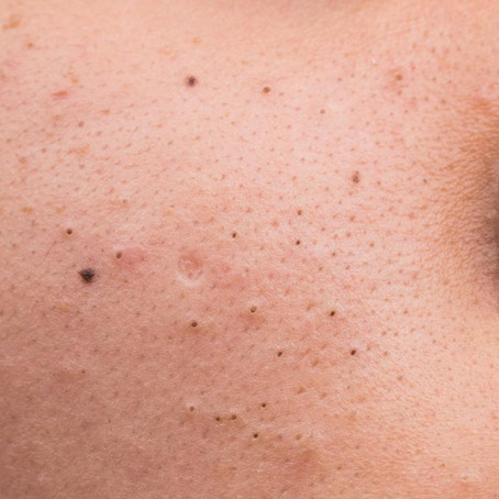 3 ways to get rid of blackheads
