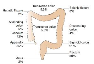 Colorectal Cancer fig1.png