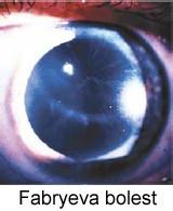 Ključna uloga oftalmologa u otkrivanju Fabryeve bolesti