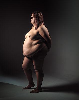 linea del arte, obesidad, transtornos de alimentación