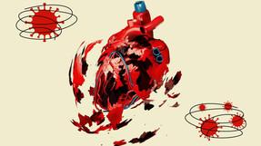 Más de la mitad de los pacientes con COVID-19 en un nuevo estudio tienen daño cardíaco