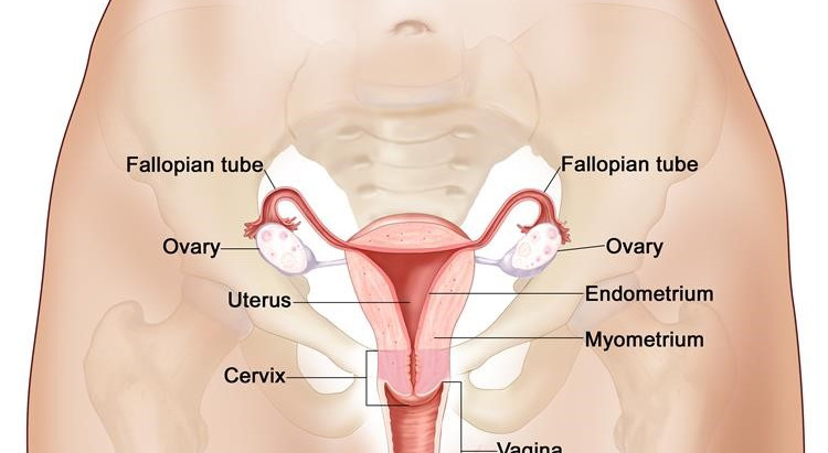 Ovarian Cancer - infographic