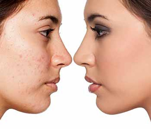treatment-for-acne-scars-chagrin-falls.j