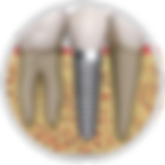 Dental_Implant-150x150.png