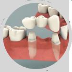 prosthodontics1.png