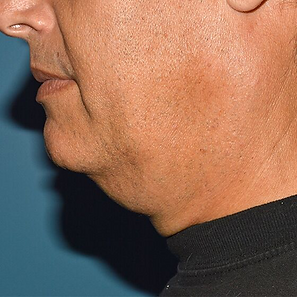 Jawline 1.png