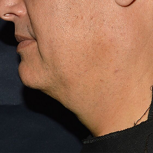 Jawline 2.png
