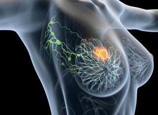 CANCER du SEIN à tumeurs multiples : La mastectomie n'est pas la seule option possible