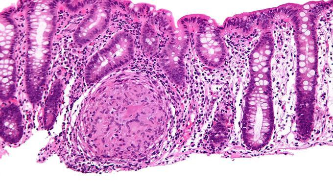 Maladie de Crohn: les promesses du microbiote
