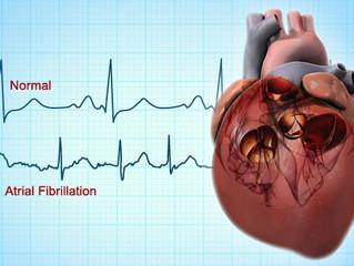 FIBRILLATION et TABAGISME : Plus on fume plus le cœur palpite
