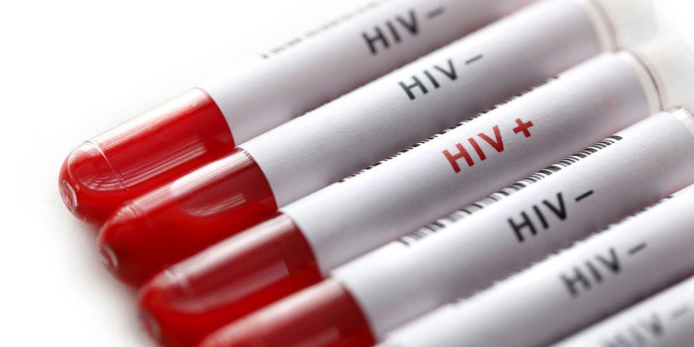 VIH | Institut de formation 100-T