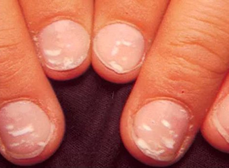 Taches blanches sur les ongles