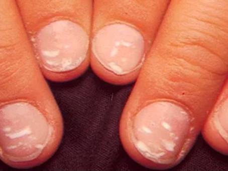 Taches blanches sur les ongles