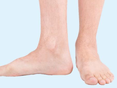 Corriger le pied plat?