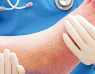 ULCÈRE DIABÉTIQUE : Le pansement «laminine-hydrogel» qui stimule l'épithélialisation
