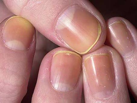 Ongles jaunes : quels sont les causes et traitements ?