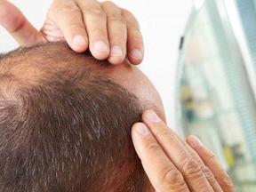 زراعة الشعر الطبيعي بالاقتطاف FUE
