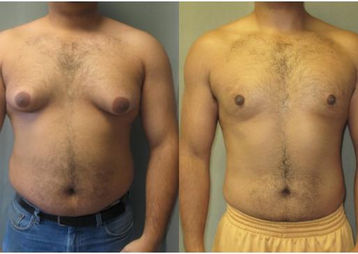 طرق علاج التثدي عند الرجال، ونتيجتها