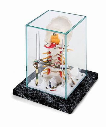 Anatomische Produkte hinter Glas