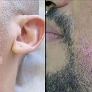 Folliculitis (Ingrown-Hairs)