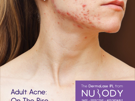 Adult Acne: On the Rise