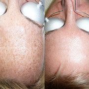Freckle Reduction