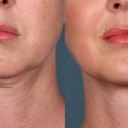 Collegen Rebuilding Skin Tightening