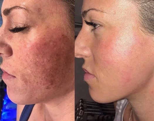 Epidermal Melasma