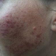 Dermalase IPL beauty laser for hair removal