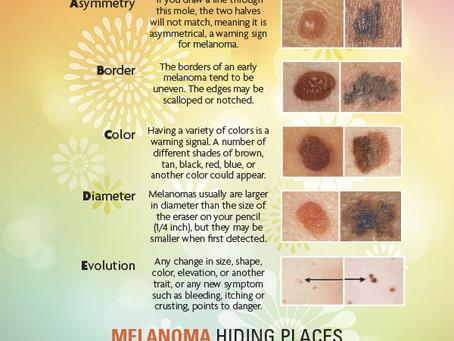 The Alphabet of Melanoma, A Skin Cancer Tutorial