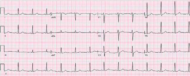 Normal-ECG-No-abnormal-Q-waves-ST-is-iso