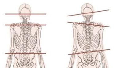 TMJ-Neck-Posture-300x173.jpg