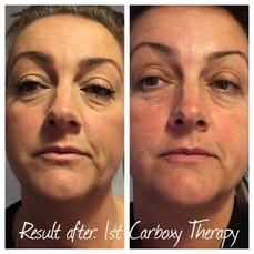Carboxy Skin Rejuvenation