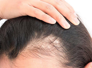 Hair loss identified as long-term symptom of coronavirus - with women most at risk