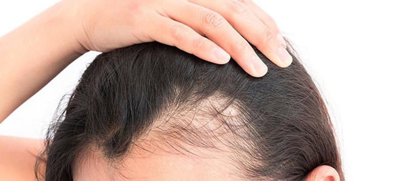 hair-loss-women.jpg