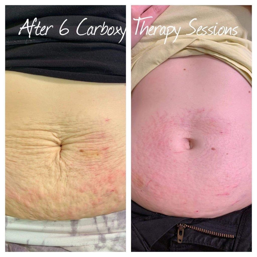 Carboxy Stomach
