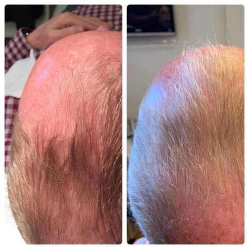 Carboxy Hair Loss