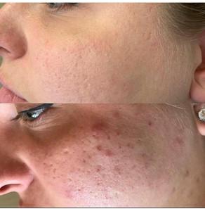 Biorepeel acne.jpg