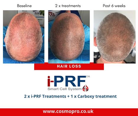 iPRF Hair Restoration