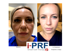 iPRF Smart Cell Therapy